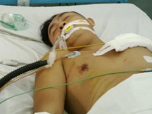 Cứu chữa kịp thời bệnh nhân bị đâm thủng tim - 1