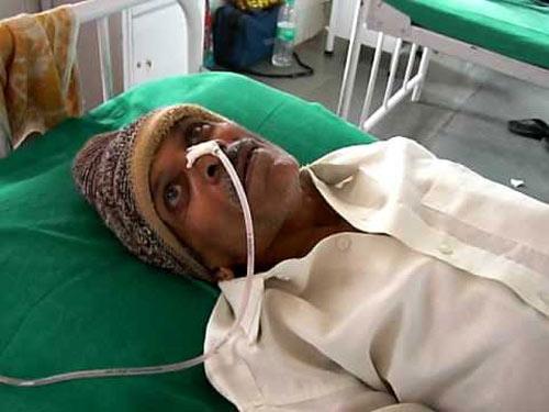 """Mỹ: 15 người bị bệnh """"bò điên"""" vì dụng cụ mổ - 1"""