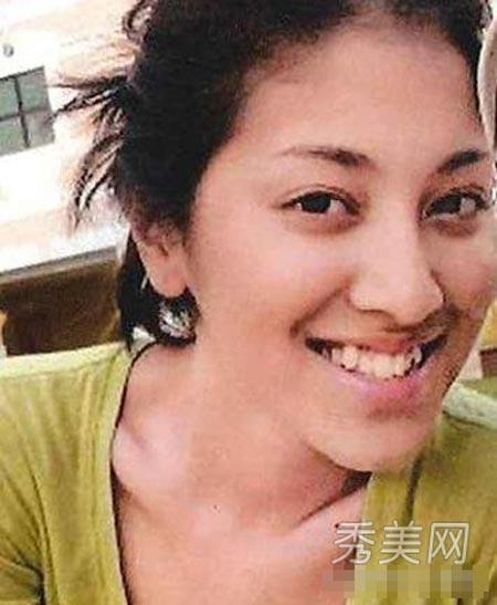 Tân hoa hậu Hong Kong từng chỉnh răng - 1