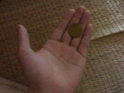 Đồng xu mắc trong thực quản bé trai 1 năm - 1