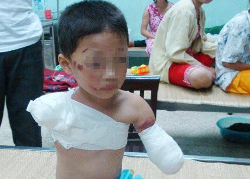 Cha mẹ lơ đễnh, con trai 5 tuổi bị gấu cắn đứt 2 tay - 1