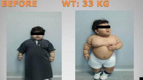 Bé trai 2 tuổi phẫu thuật cắt dạ dày để giảm cân - 1