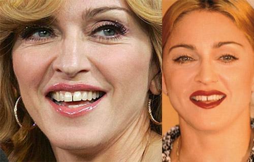 7 người đẹp nói không với sửa răng - 1