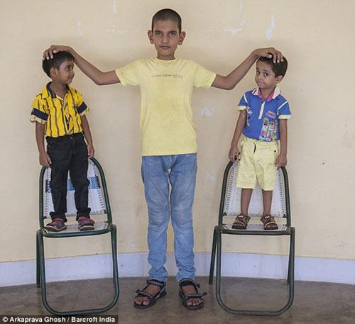 Sửng sốt cậu bé 5 tuổi cao 1m7 - 1