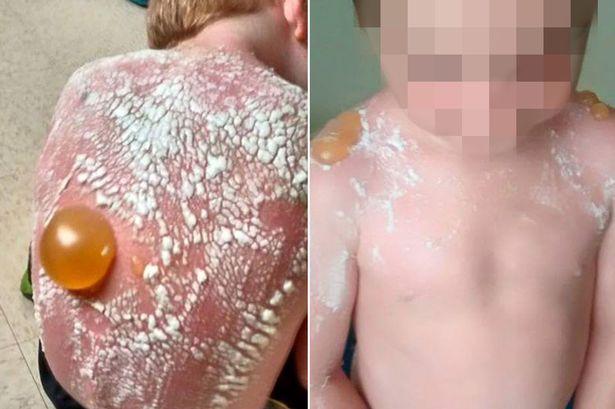 Bị nhà trẻ bỏ quên ngoài trời nắng, bé 7 tuổi bỏng rộp lưng - 1