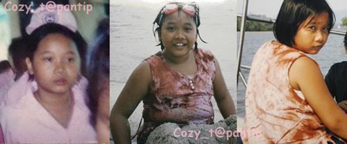 Màn thay đổi đáng kinh ngạc của thiếu nữ Thái mặt mụn - 1