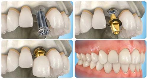 Trồng răng giả nguyên hàm bằng cách cấy ghép Implant - 1