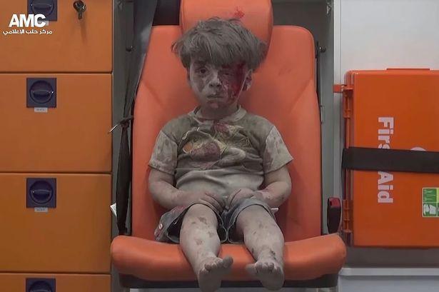 Hình ảnh bé trai Syria nhem máu rung động cả thế giới - 1