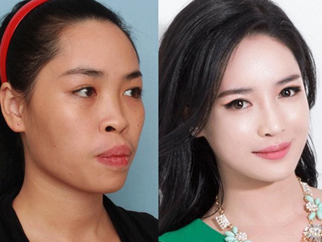 """Hot girl Nam Định ước tính """"đập toàn mặt"""" tốn 1,5 tỷ đồng"""