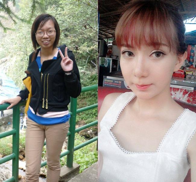 """3. Cũng là một cô gái đến từ Nam Định, tên Lưu Tuyết Nhung """"hóa thiên nga"""" nhờ phẫu thuật thẩm mỹ."""