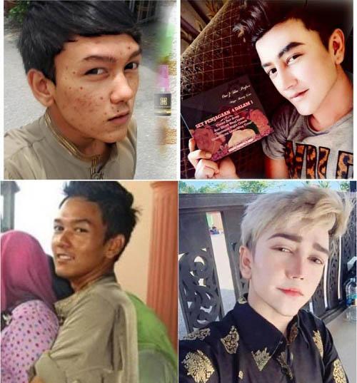 """Sốc vì mặt mụn chi chít trước """"dao kéo"""" của hot boy Malaysia - 1"""