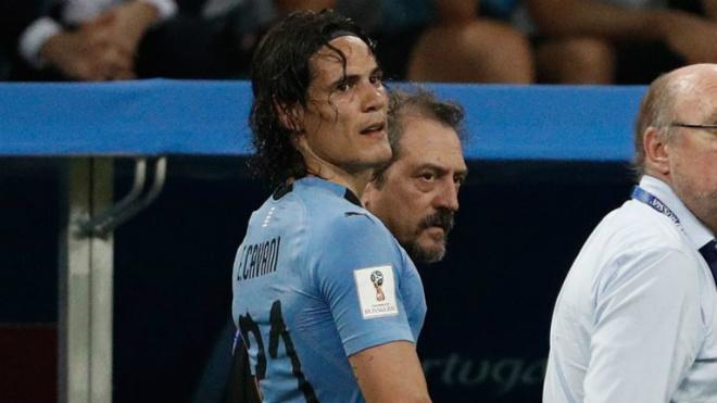 Trực tiếp vòng 1/8 World Cup 2018: Uruguay gặp tổn thất cực lớn - 1