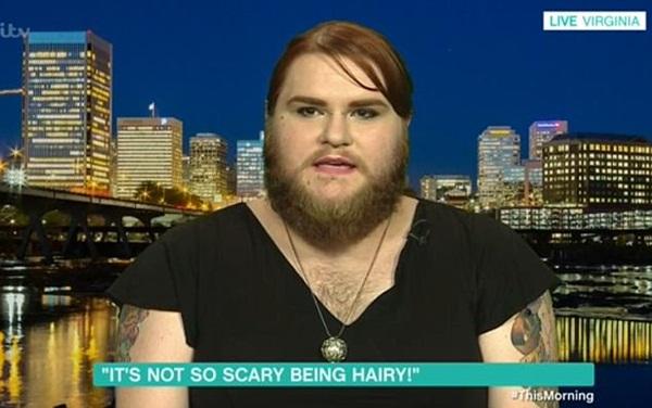 Cô gái không ai dám yêu vì râu ria mọc lởm chởm như đàn ông - 1