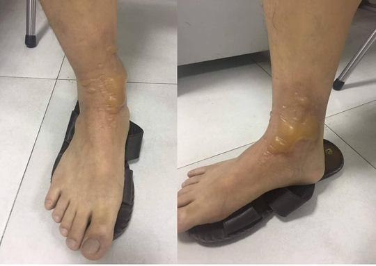 Đi massage chân, một nam giới nhập viện vì bỏng phức tạp - 1