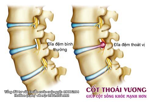 Phát hiện mới giúp giảm đau lưng và cải thiện tình trạng thoát vị đĩa đệm - 1