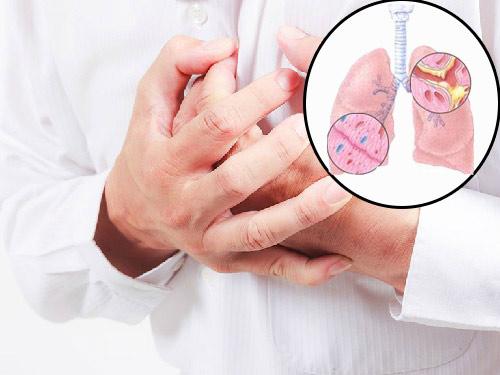 Xuyên bối mẫu – Cứu tinh cho những bệnh nhân hen suyễn - 1