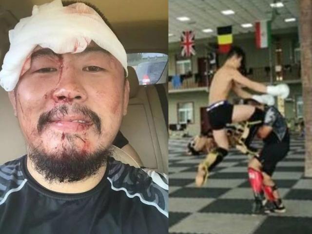 Bị kẻ vô danh đánh vỡ đầu sau 10 giây: Từ Hiểu Đông thân bại danh liệt