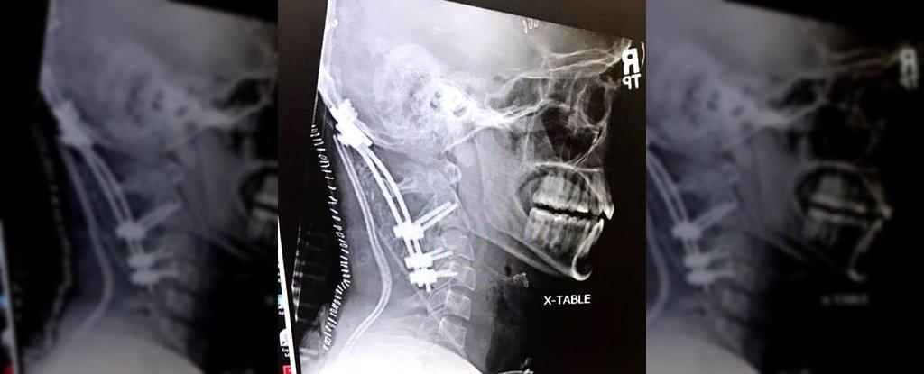 """Mỹ: Vụ tai nạn hy hữu khiến người đàn ông """"đứt đầu từ bên trong"""" - 1"""