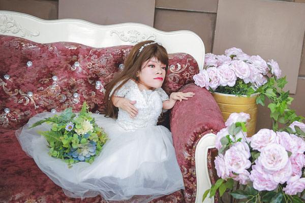 Chuyện cảm động sau bộ ảnh cưới của cô dâu nặng 13 kg - 1