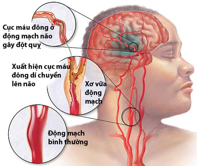 Bảo bối giúp ngăn chặn tai biến do mỡ máu tăng cao của người Nhật - 1