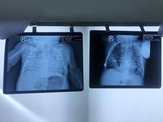 Sốc: Bé trai phổi trắng xoá do nhiễm lao từ cha khi 2 tháng tuổi - 1