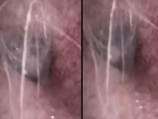 Bác sĩ sốc khi thấy nhện làm tổ trong tai bệnh nhân