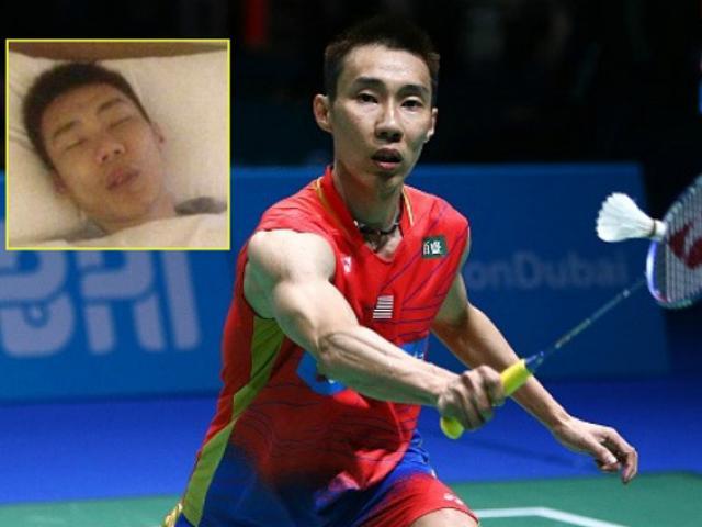 Huyền thoại cầu lông Lee Chong Wei bị ung thư: Hãy chuẩn bị điều tệ nhất