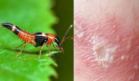 """""""Mùa"""" kiến ba khoang, làm gì để phòng tránh loài côn trùng này? - 1"""