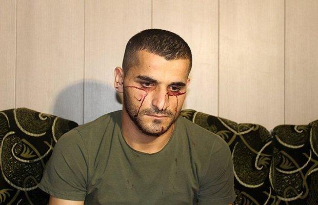 Người đàn ông bị máu chảy ra không ngừng từ mắt và tai - 1