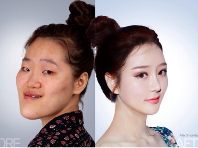 """Hàn Quốc: Xấu xí là thất bại đời người đến hiện tượng """"100 khuôn mặt trông như 1"""""""