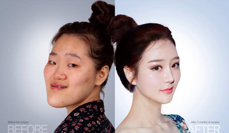 """Hàn Quốc: Xấu xí là thất bại đời người đến hiện tượng """"100 khuôn mặt trông như 1"""" - 1"""