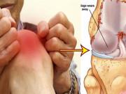Chỉ 3 phút mỗi ngày, viêm khớp, thoái hoá khớp tê nhức khớp tay chân chỉ còn trong dĩ vãng