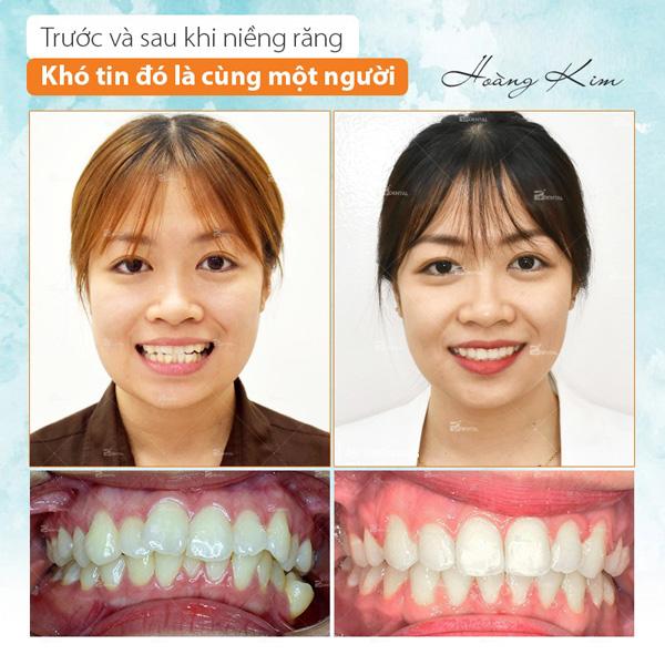 Trước và sau khi niềng răng quá khác biệt, thật khó tin đó là cùng một người - 1