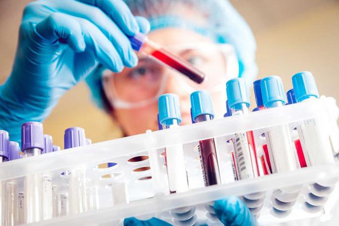 Chuyên gia lý giải vì sao ung thư gan ở Việt Nam vọt lên vị trí hàng đầu thế giới - 1