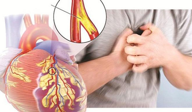 Biểu hiện, nguyên nhân báo động mỡ máu cao và cách xử lý của người Nhật - 1