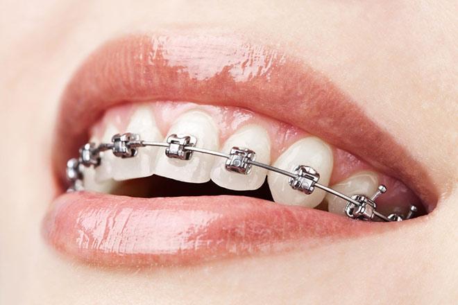 Những sai lầm gây hậu quả nghiêm trọng trong niềng răng - 1