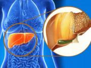 Cách đẩy lui bệnh gan nhiễm mỡ ở giai đoạn 2, phòng ngừa xơ gan
