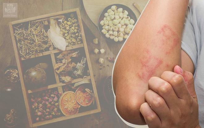 Nổi mẩn đỏ ngứa da là bệnh gì? Đâu là cách chữa hiệu quả, không tái phát? - 1