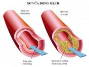Cảnh báo xơ vữa động mạch, nguy cơ tai biến nếu để bệnh mỡ máu kéo dà