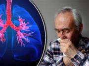 Tin tức sức khỏe - Thoát 40 năm vật lộn với đờm, ho, khó thở nhờ 2 lần mỗi ngày