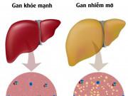 Tiến trình các giai đoạn gan nhiễm mỡ và cách điều trị khuyến cáo