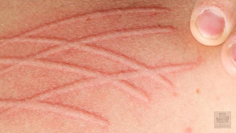 Da vẽ nổi là bệnh gì? Biểu hiện dị ứng da vẽ nổi và cách điều trị hiệu quả - 1
