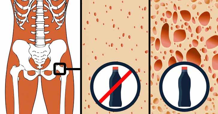 9 thực phẩm bạn ăn hằng ngày nhưng hủy hoại cơ thể không ngờ - 9