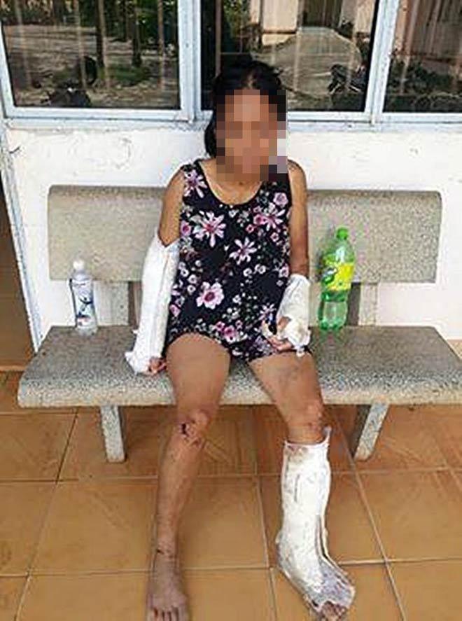 Vợ có thai bị chồng đánh gãy tay chân, vỡ nền sọ - 1