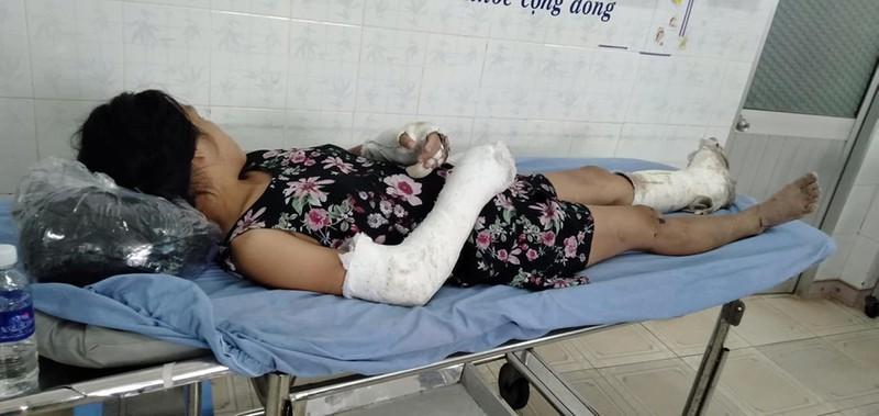 Thai phụ bị chồng đánh vỡ nền sọ, gãy tay bất ngờ trốn viện - 1