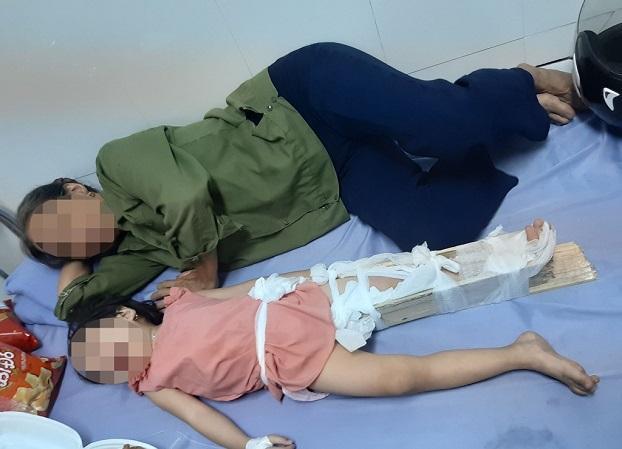 Học sinh ở Hà Nội ngã gãy chân tại trường: Phụ huynh 'tố' hiệu trưởng vô cảm - 1