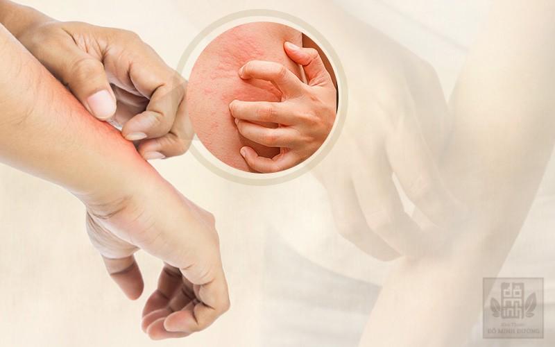 Nổi mề đay là gì? Nguyên nhân, triệu chứng và cách điều trị bệnh hiệu quả - 1
