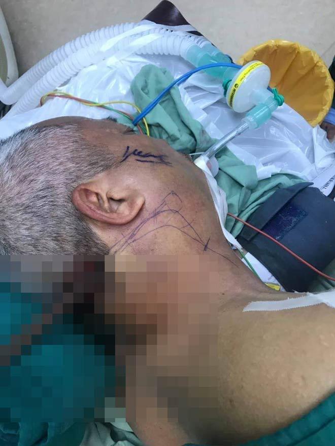 Trèo tường rào chặt cây, người đàn ông bị thanh sắt đâm xuyên vùng cổ - 1