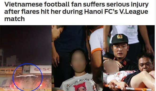 Choáng pháo sáng sân Hàng Đẫy khiến fan nhập viện: Báo chí thế giới viết gì? - 1