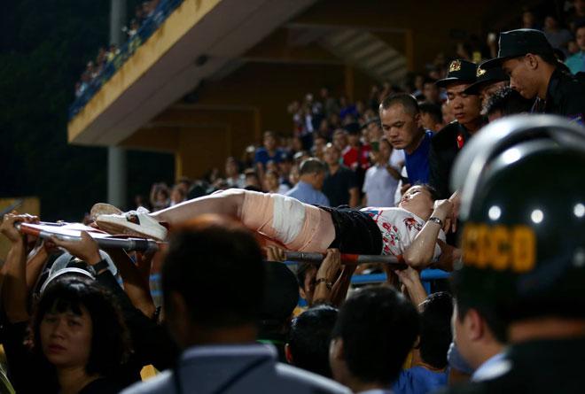 Hà Nội FC muốn tìm kẻ phá hoại bắn pháo sáng sân Hàng Đẫy khiến fan nhập viện - 1